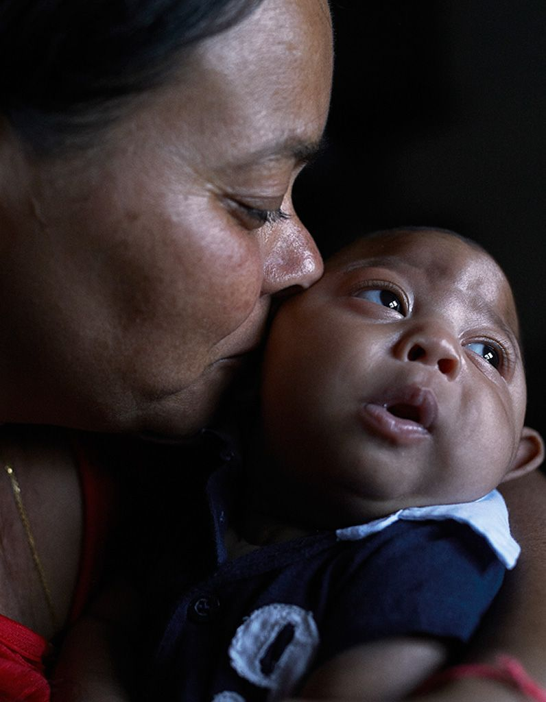 bebe atteint zika virus