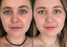 Glossier dévoile un nouveau produit bluffant contre l'acné et les peaux ternes