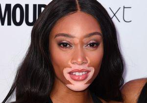 Atteinte de vitiligo, la mannequin Winnie Harlow se déshabille sur Instagram pour montrer son incroyable corps