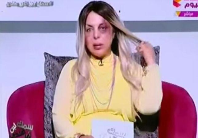 La photo choc de cette journaliste égyptienne a fait le tour du Web
