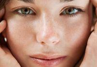 Acné : les bons gestes pour une peau zéro défaut
